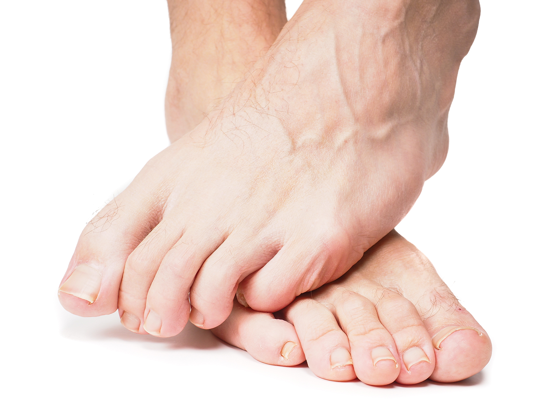 18 Ways To Keep Diabetic Feet Healthy Simply Well