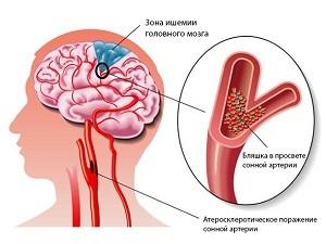 hipertenzijos skundų gydymas