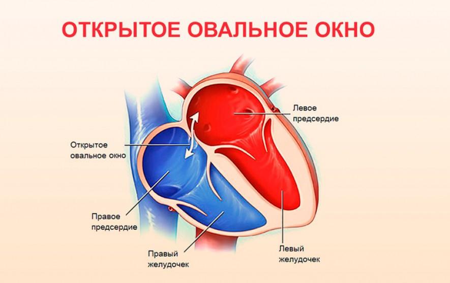 Врожденный порок сердца – дефект межжелудочковой перегородки сердца у новорожденного: что это такое, симптомы, диагностика, методы лечения. Дефекты межпредсердной перегородки