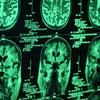 Brain-Damage-Injury-or-Death