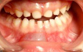 الفلورايد في الماء وتصبغ الاسنان