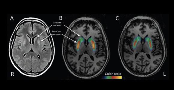 dopamine-production-pet-scan-parkinson-disease