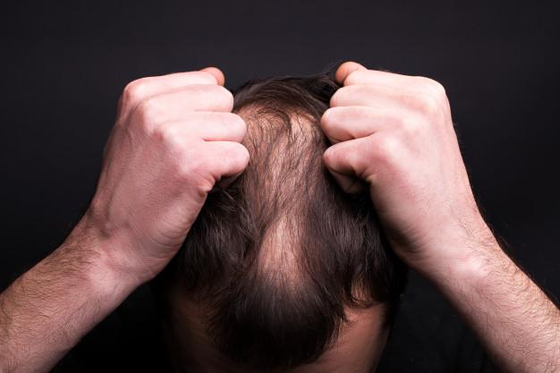 alopecia consecuencias