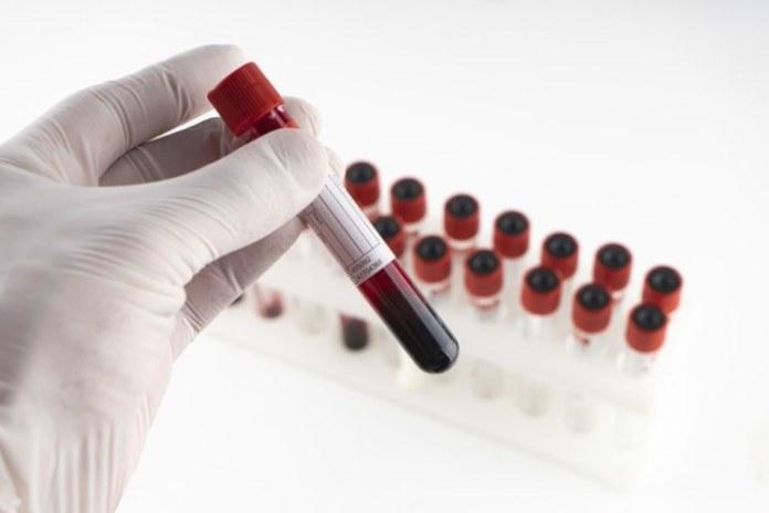Teste sorológico para Covid-19 integra quadro de cobertura obrigatória de planos de saúde