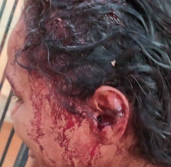 Adolescente usuário de drogas quase a mata a própria mãe em Água Doce do Norte