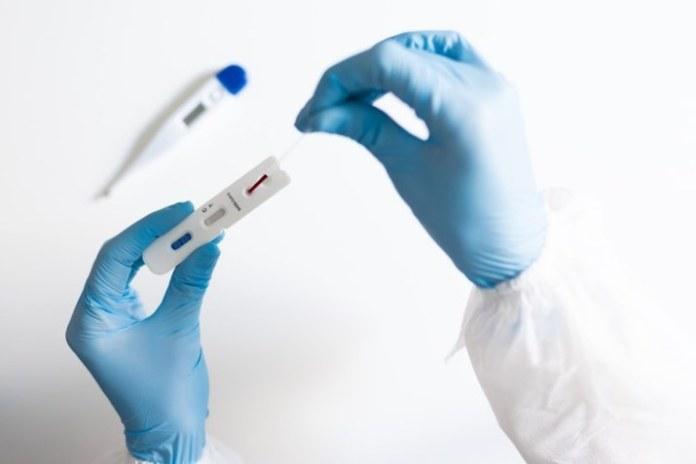 Brasil alcança a marca de 17 mil testes diários para Covid-19