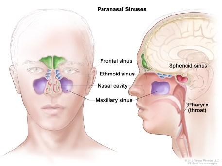 sphenoid sinus (Patient) - Siteman Cancer Center