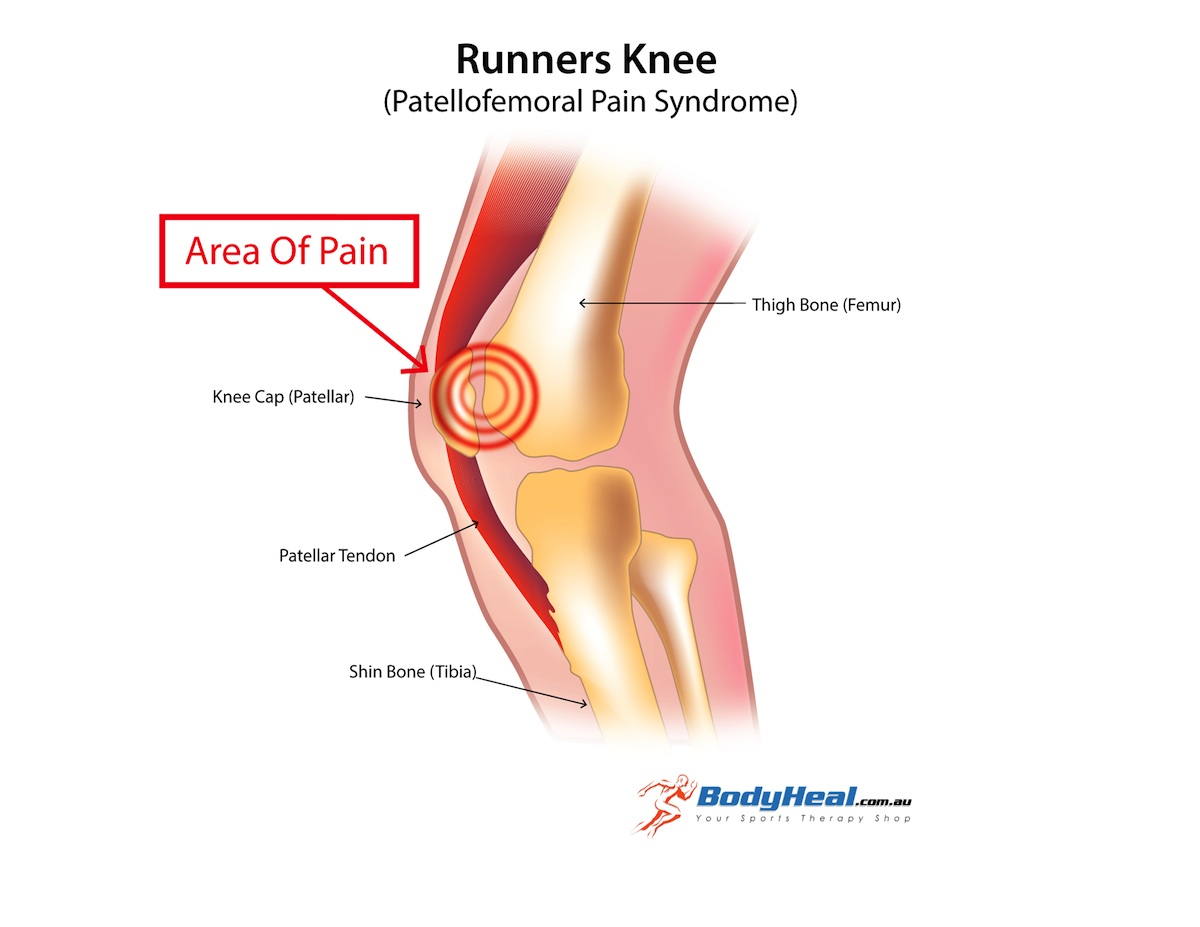 Chart Location Knee Pain