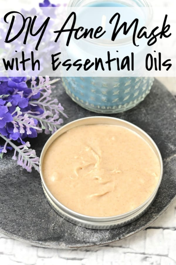 DIY Face Mask for Acne - Kick pimples and blackheads to the curb with this super simple DIY Acne Face Mask with Essential Oils! Lavender and Tea Tree Essential oils come together to provide a healing experience that is cool and calm while leaving your skin beautifully clean!