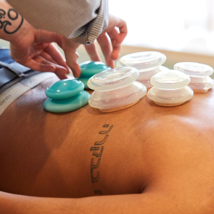 Cupping – a modern twist on an ancient therapy