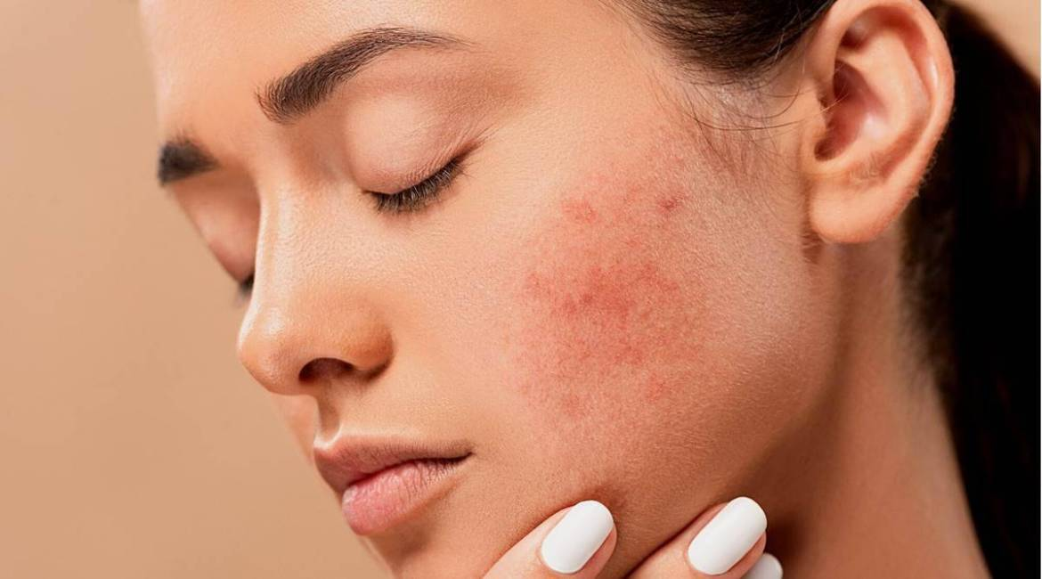 acne remove from skin