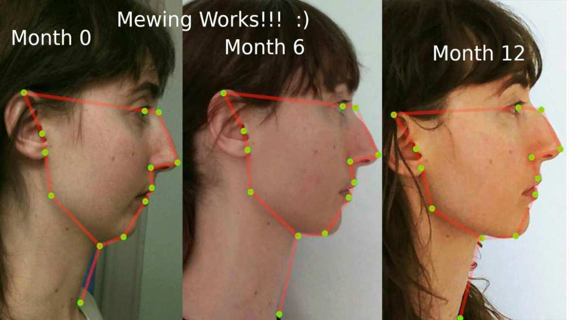 mewing works