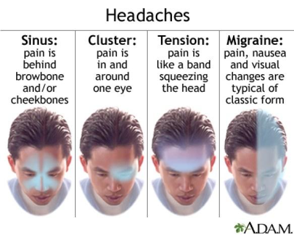 Sinus and migraine