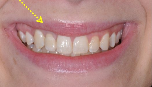 Implant #7 with Crown