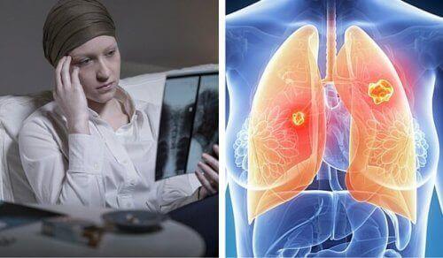 Внимание! Вижте как да разпознаете ранните признаци за рак на белия дроб!