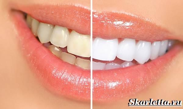 Отбеливание-зубов-в-домашних-условиях-4