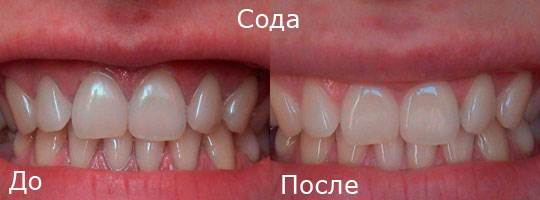 Отбеливание-зубов-в-домашних-условиях-5