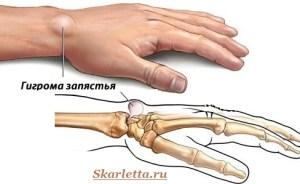 Гигрома-запястья-Причины-гигромы-Лечение-гигромы-1