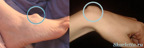 Гигрома-запястья-Причины-гигромы-Лечение-гигромы-2