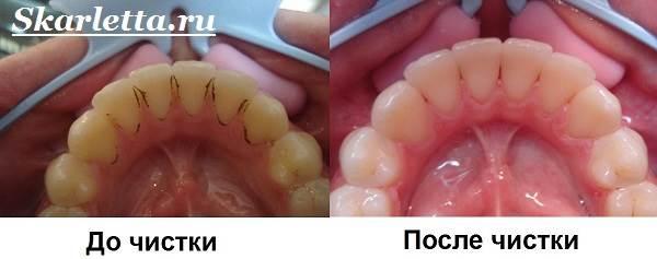 Камни-на-зубах-Лечение-и-профилактика-зубного-камня-12