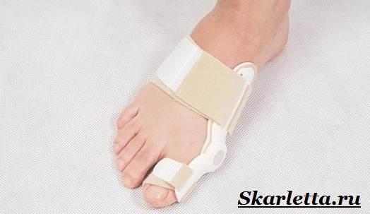 Шина на ногу от косточки