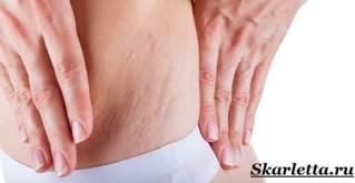 Растяжки-на-коже-Причины-Как-избавиться-от-растяжек-1