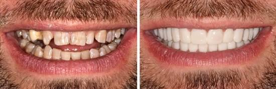 Виниры-на-зубы-их-классификация-способы-установки-цены-10