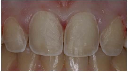 Виниры-на-зубы-их-классификация-способы-установки-цены-7-1