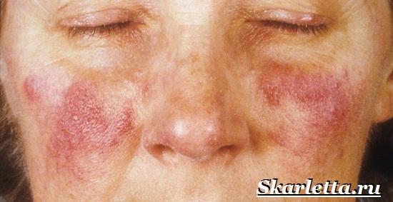 Что-такое-купероз-Причины-и-лечение-купероза-13