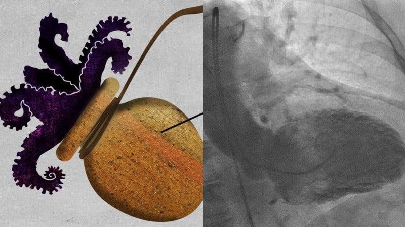 Takotsubo - hội chứng trái tim tan vỡ - bạch tuộc trong nồi