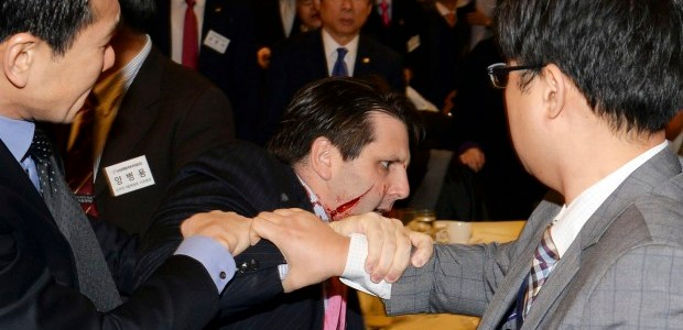 US ambassador slashed on face in South Korea
