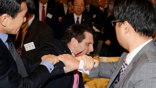 US ambassador slashed on face in South Korea
