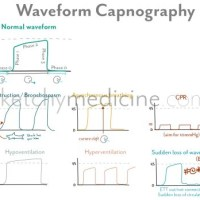 Waveform Capnography