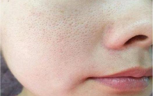 Pori-pori Besar Pada Wajah Dapat Teratasi