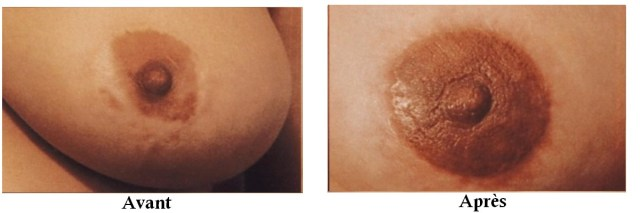 avant apres onco cicatrice de seins