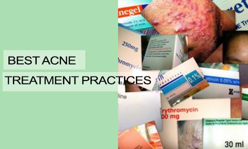 Best Acne Treatment Practices