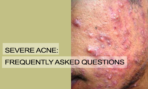 Severe Acne: Frequently Asked Questions