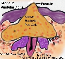 Severe Inflammed Acne