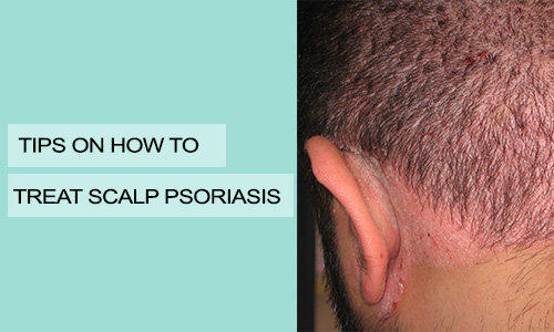Tips on How to Treat Scalp Psoriasis