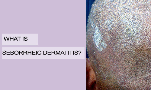 What is Seborrheic Dermatitis?