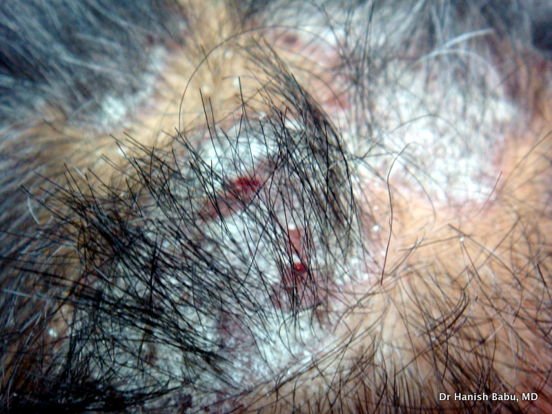Itchy Scalp Psoriasis: Auspitz Sign