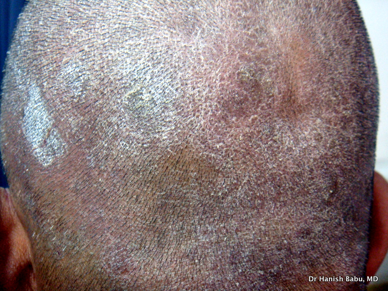 Seborrheic Dermatitis can cause an intensely itchy scalp.