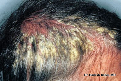 Pityriasis amiantacea can cause severe scalp irritation and itching
