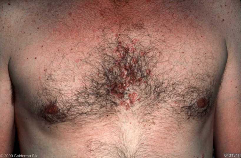 Seborrheic Dermatitis Chest. Image Courtesy: Galderma