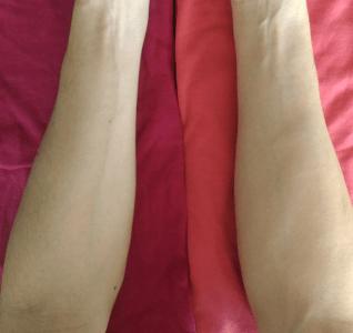 ブルーベースの肌の場合、左腕がより透明感が高まり美しい肌に見えて、右腕は黄色っぽく、くすんで見える。