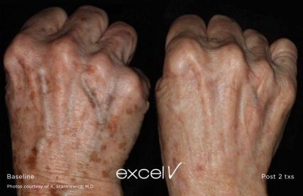 Hands before and after 2 excel V treatments