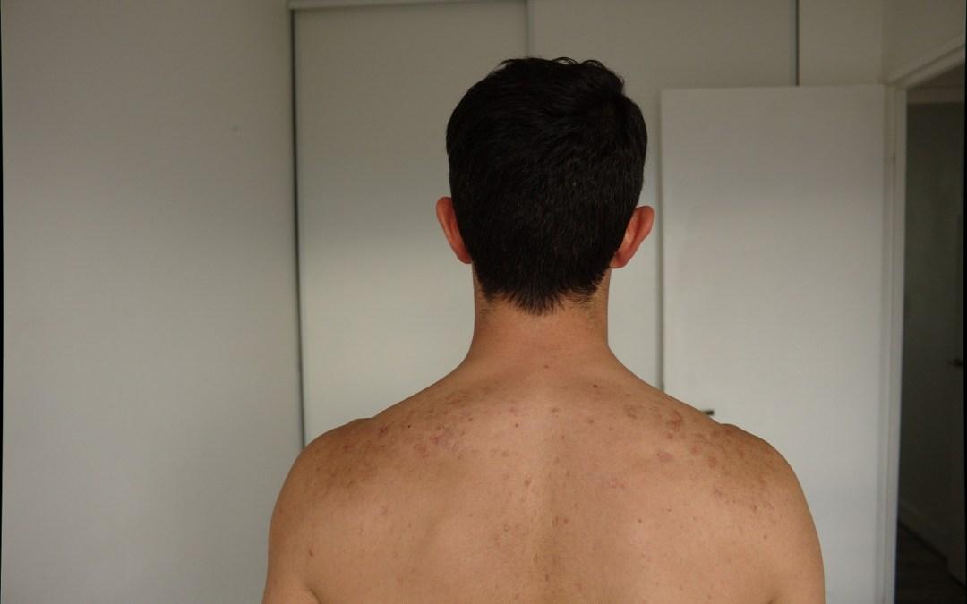 Mon Dos, Mes cicatrices Après 5 ans Sans Acné…