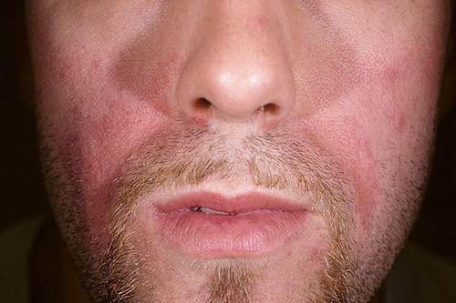 dermite-seborrheique-visages-plaques-rouges