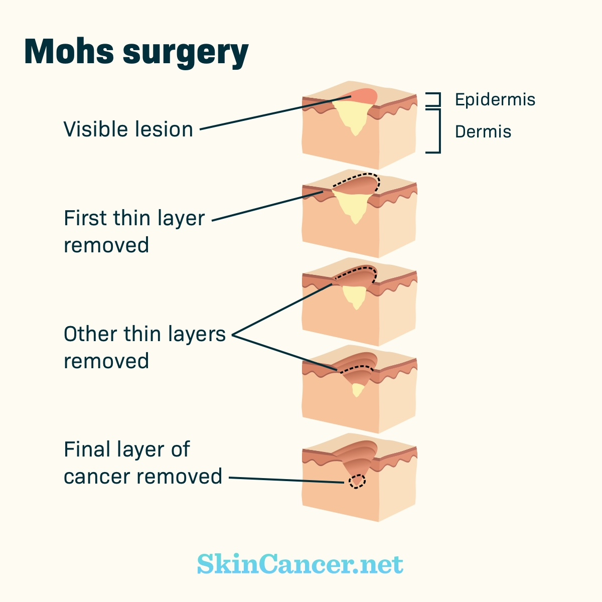 Mohs Surgery As A Skin Cancer Treatment Option