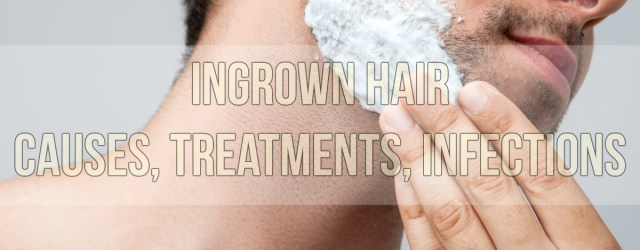 Ingrown Hair Causes, Treatments, Infections